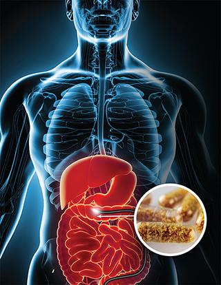 Fecal Transplantation Medical Treatments